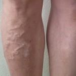 下肢静脈瘤の写真を公開!見た目や痒み重だるさを改善した30分の手術!